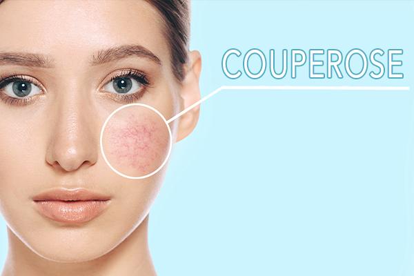 immagine sulla couperose